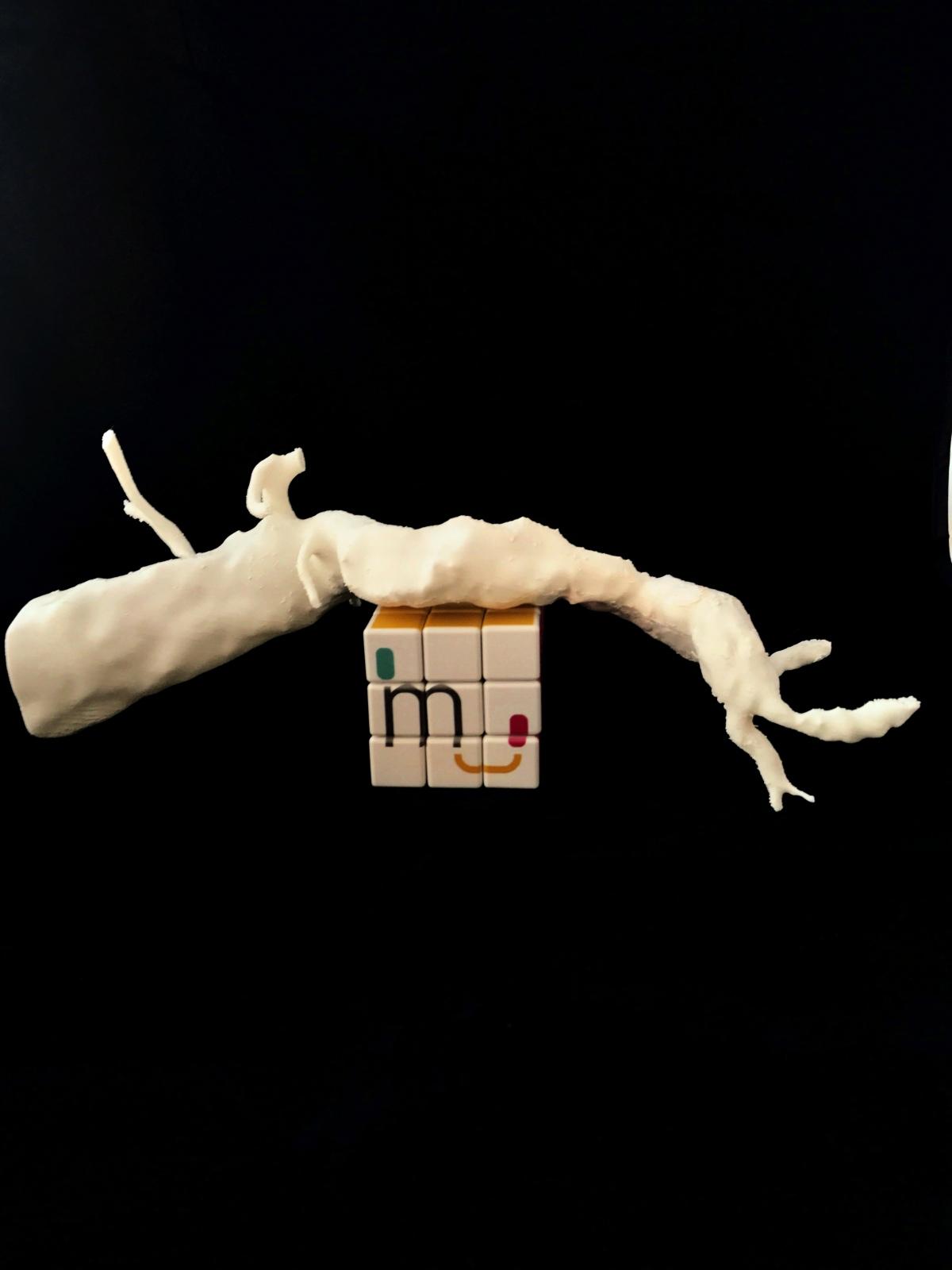 Aneurisma de AortaAbdominal